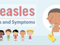 Asheville public health officials brace for possible measles outbreak